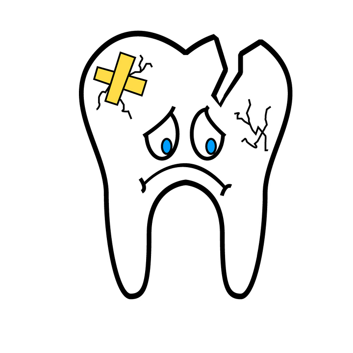 broken-tooth-2351797_960_720.png